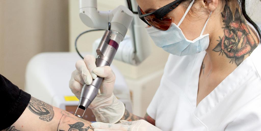 Tattooentfernung München - Effizient und hautschonend mit dem BiAxis QS Laser